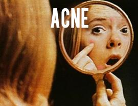self diagnosis acne